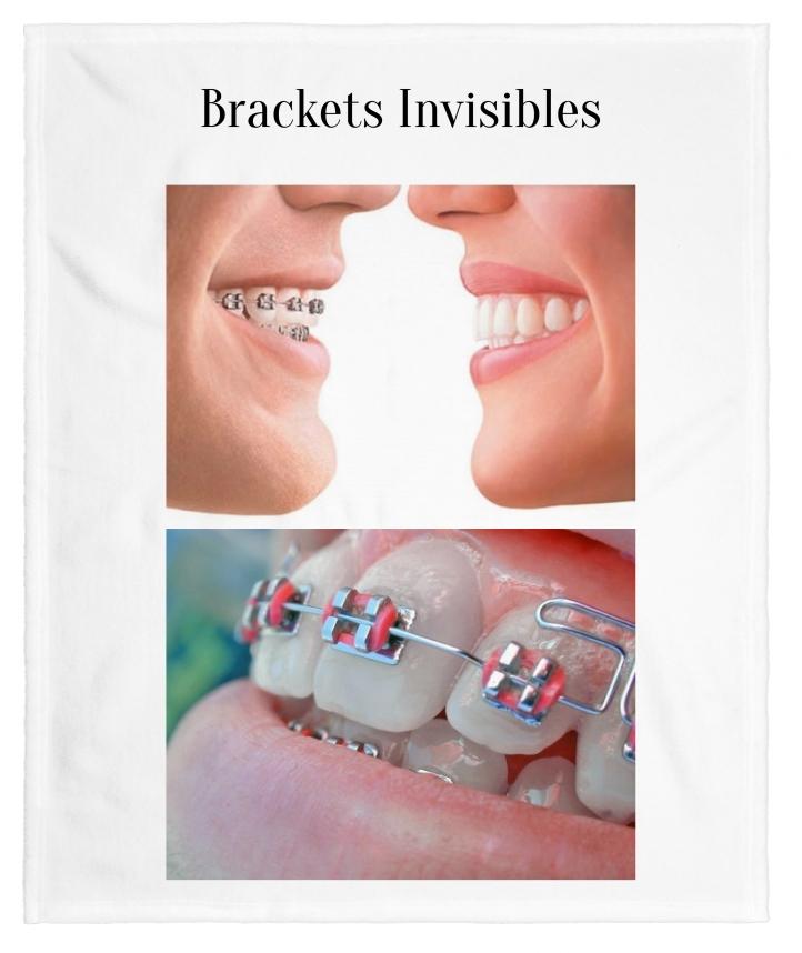 brackets invisibles bogota